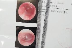 右耳有问题,左耳被理疗? 天心区卫计局将对此进行调查
