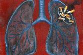 【提醒】可怕!30年烟龄男子捐肺,医生取出后放弃使用