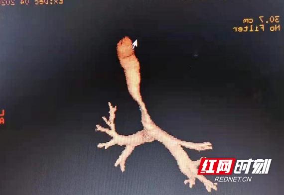 1615183608(1)_看图王.wm.jpg